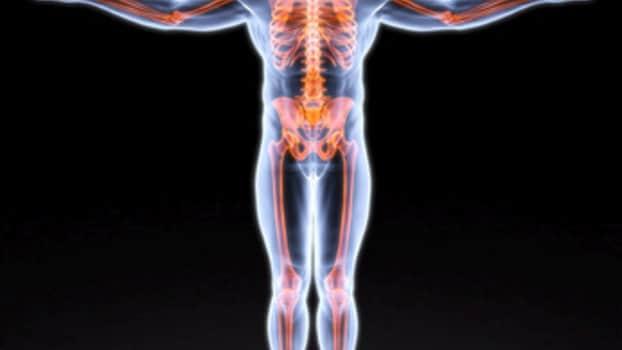 importanza della vitamina D per le ossa